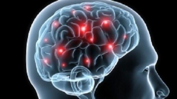 Cum poți avea un creier sănătos?